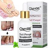 Nagelpilz Öl, Pilz Nagel Behandlung, Anti-Pilz, Natürliche Anti-Pilz-Lösung Mit Reinen...