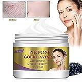 Whitening Cream,Gold Caviar Whitening Moisturizing Cream, Antifaltencreme...